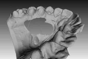 High resolution dental scan in 100μm resolution.